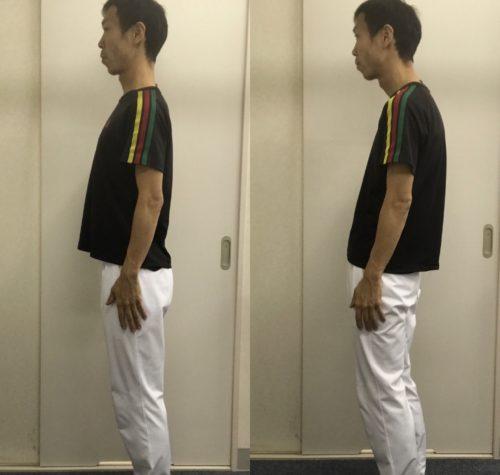 膝痛治療と姿勢の関係