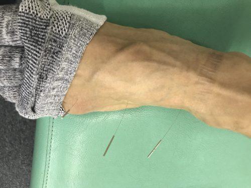 モートン病ー鍼灸治療