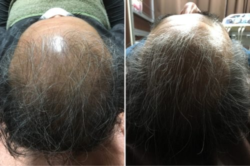 所沢市で発毛育毛なら返金保障付きのおおはら村整骨院発毛システム