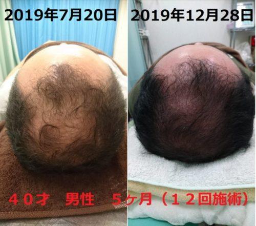 所沢で最先端シミシワケア、発毛育毛ならおおはら村鍼灸整骨院