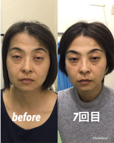 所沢おおはら村鍼灸整骨院シミシワ治療事例|アンチエイジング