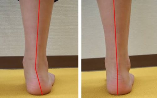 所沢おおはら村鍼灸整骨院足専門治療